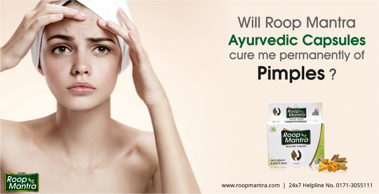Will-Roop-Mantra-ayurvedic-capsules-cure-me-permanently-of-pimples