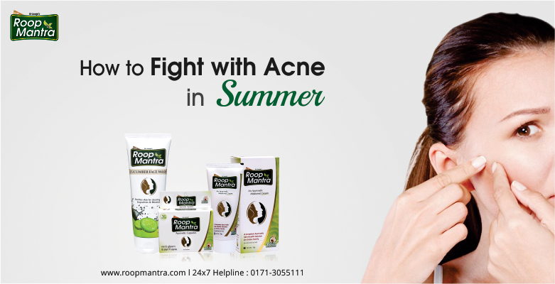 How to Fight With Acne In Summer - Roop Mantra
