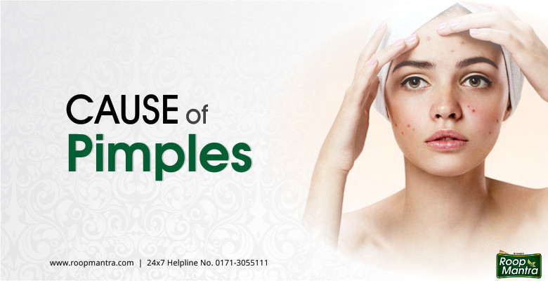 Cause-Of-Pimples