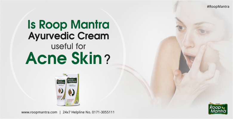 Is-Roop-Mantra-Ayurvedic-Cream-Useful-For-Acne-Skin