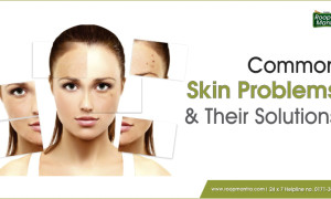 Common skin problems and their solutions