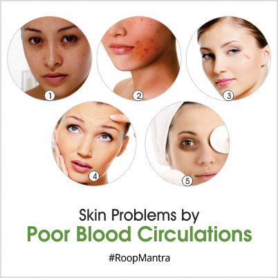 Which-skin-problems-are-caused-by-poor-blood-circulations