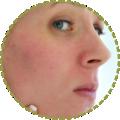 Facial Flush