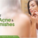 Causes Of Adult Acne And Blemishes, About How Breakout Occurred? Is It From Stress? Is It Because Of Pms? Is It Related To Diet? Is It Because Of Not Washing Your Face?   Why These Occasional Blemishes Or Acne Occurs? How Pimples Are Formed? Do You Touch Your Face A Lot? Have You Been Under Stress? Have You Washed Your Skin At Night? Have You Been Eating More Dairy Products These Days? What Are Cystic Breakouts? Have You Started Using Some New Skincare Products? Is Your Menstrual Cycle Near? Common Causes That Can Lead To Blemishes