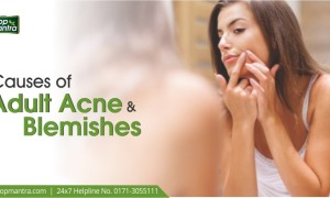 Causes of Adult Acne and Blemishes