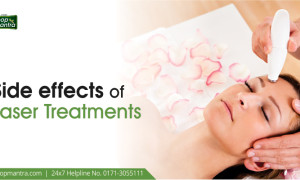 Side effects of Laser Treatments