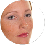Skin-pigmentation-after-laser-treatment