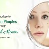 Say-Good-bye-to-Stubborn-Pimples-through-Natural-Means-blog