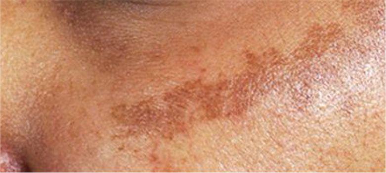 Age-Spots-and-Skin-Darkening
