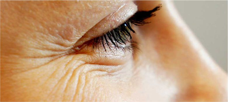Crow's-Feet-are-the-first-signs-of-aging