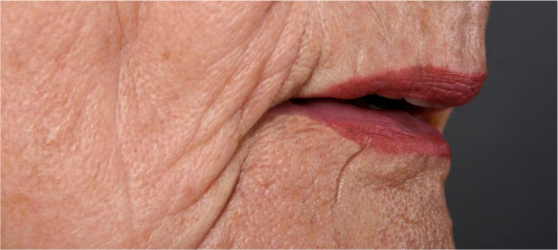 Wrinkles-are-also-a-sign-of-againg