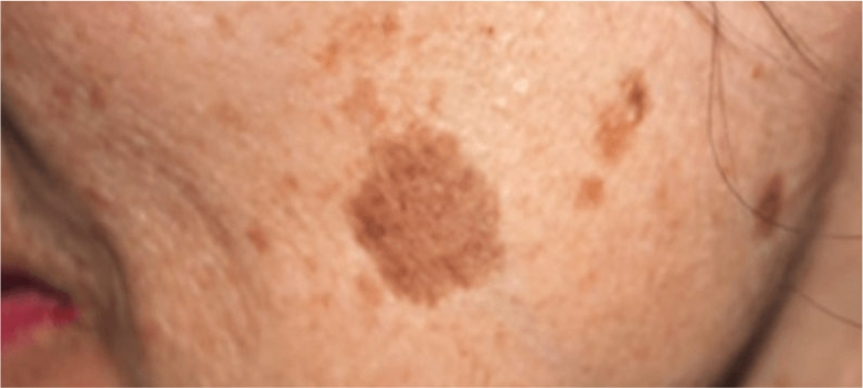 Appearance-of-Brown-Spots-due-to-chemical-products