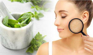 Different Ways to Use Mint Leaves for Acne and Acne Scars