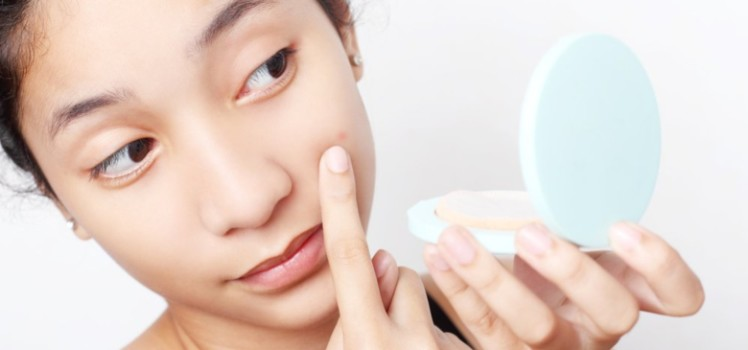 Reduce-Facial-Acne-Scars-with-Easy-Natural-Ways