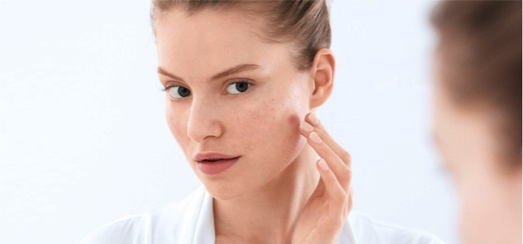 How-to-Reduce-Pimple-Redness-with-the-Help-of-Home-Remedies-blog